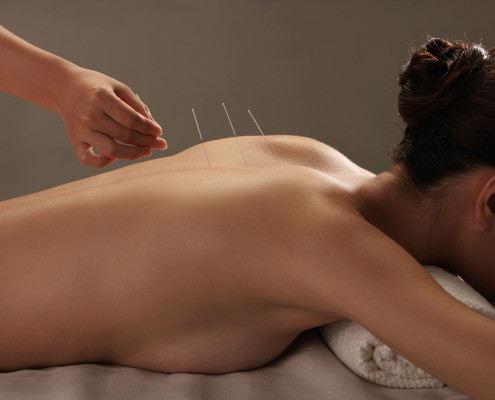 Acupuncturist pressing needles into woman's back